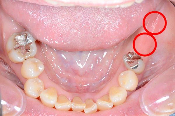 入れ歯 奥歯 部分 早めに検討しよう!奥歯を失ったときの部分入れ歯